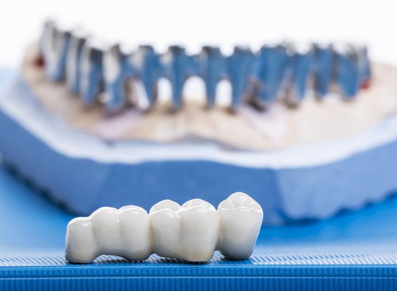 Keramische kronen - in een tandtechnisch laboratorium