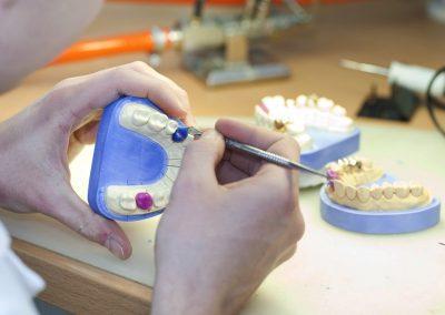 tandtechniek dentia labaratorium